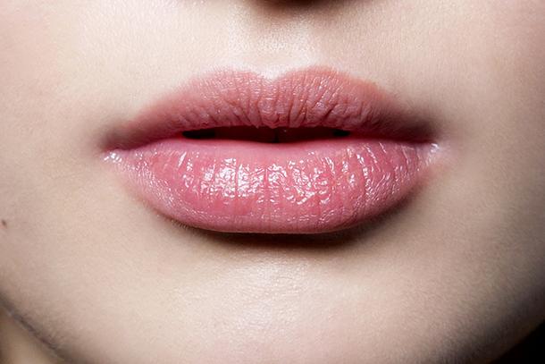 chapped-lips2